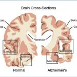 Disorders of Brain Function
