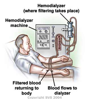 artificial kidney machine is called