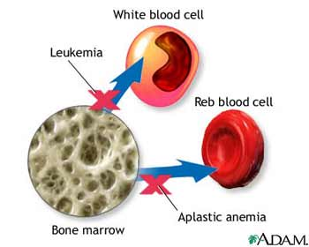 pictures A Blood and Bone Marrow Cancer Drug May Help Treat Triple-Negative Breast Cancer