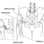 Disorders of the Joints