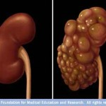 Other Urinary Tract Disorders