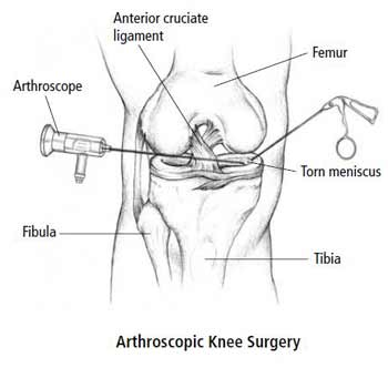 the benefits of arthroscopic shoulder surgery During shoulder arthroscopy, your surgeon inserts a small camera, called an arthroscope, into your shoulder joint the camera displays pictures on a television.