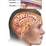 Other Neurological Disorders