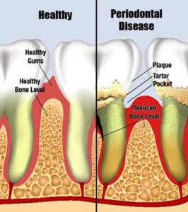 Periodontal Disease, pumping breast milk product storage supply, feeding breast milk drying up, increase breast milk supply, avent isis breast pump manual, feeding baby milk, baby solids, weaning breastfeeding, mom breastfeeding benefits information supplies, nursing and feeding, health facts chocolate, childhood immunization schedule, children immunizations