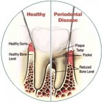Warning Signs of Periodontal Disease