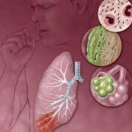 Infectious Lung Disorders