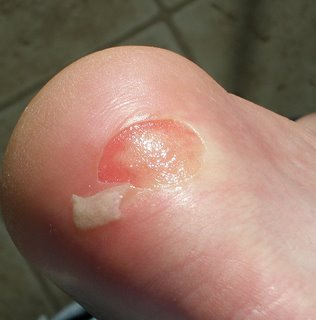 Health and Fitness » Blister