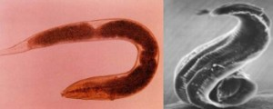 Health and Fitness » Pinworms