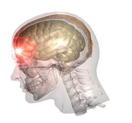 brain, injury, head, trauma, accident, crash, wreck, car, Las Vegas, Summerlin, Clark County