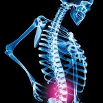Best Tips to Avoid Back Pain