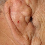 Cauliflower Ear