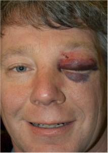 Black Eye, Bleeding into the tissues, surgical OPERATION, trauma to the area