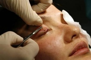 Blepharoplasty, surgical OPERATION, eyelids, PARKINSON'S DISEASE