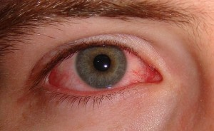 Conjunctivitis, INFLAMMATION of the conjunctiva, mucous tissue, eyelids, pink EYE
