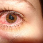 Iritis: Inflammation of the Iris
